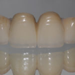 zirconia_bridge_home